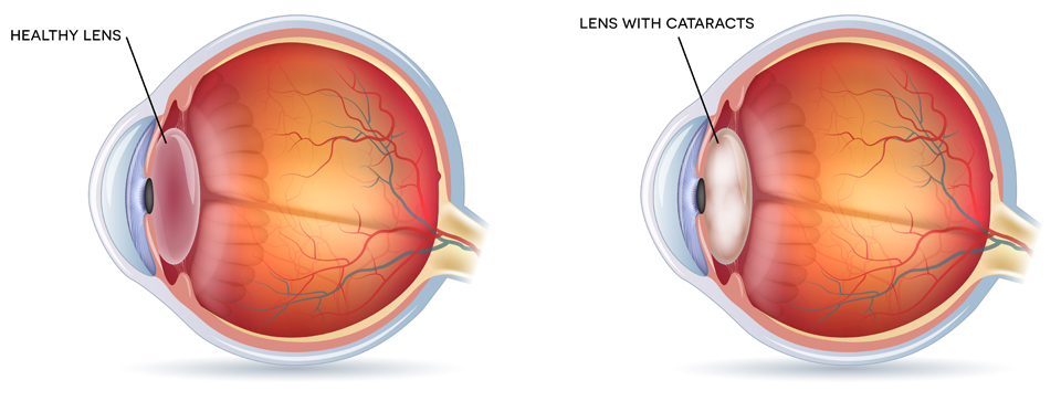 Exeter Eye Cataract lens diagram