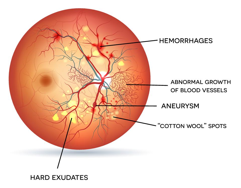 Exeter Eye Diabetic Retinopathy Eye Diagram Exeter Eye