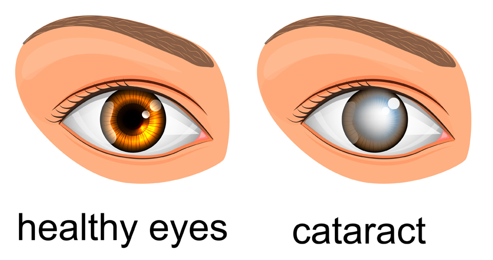 Exeter Eye Healthy eye vs cataract diagram