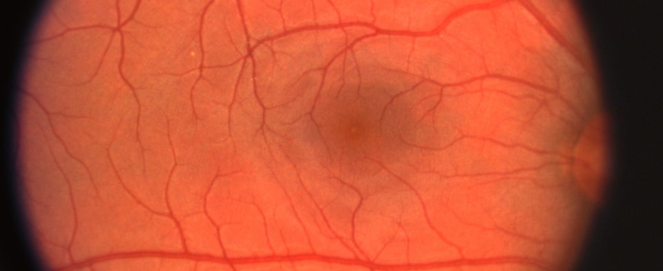 Exeter Eye conditions Diabetic Retinopathy