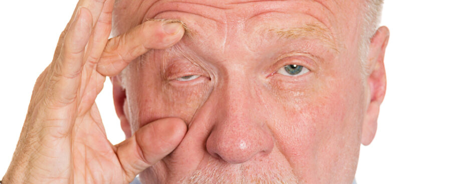 Ptosis (Droopy Eyelids)
