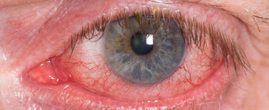 Retinal Vein Occlusion