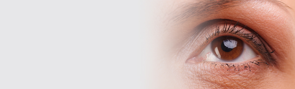 Exeter Eye eyelid surgery slider
