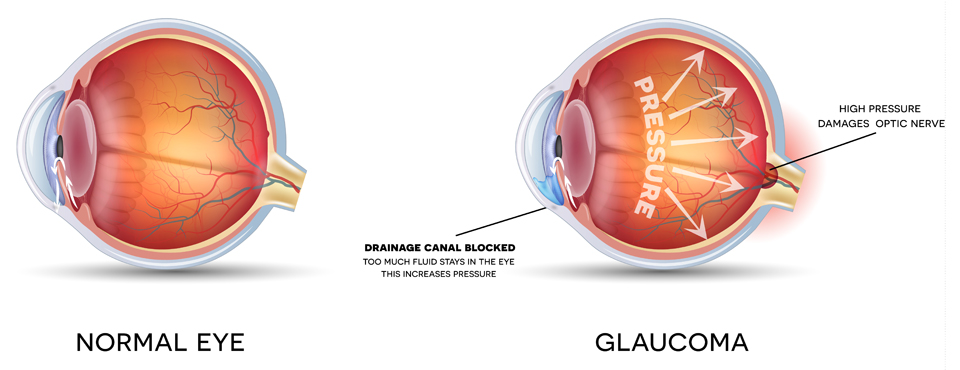 Exeter Eye glaucoma high pressure damages optical nerve diagram