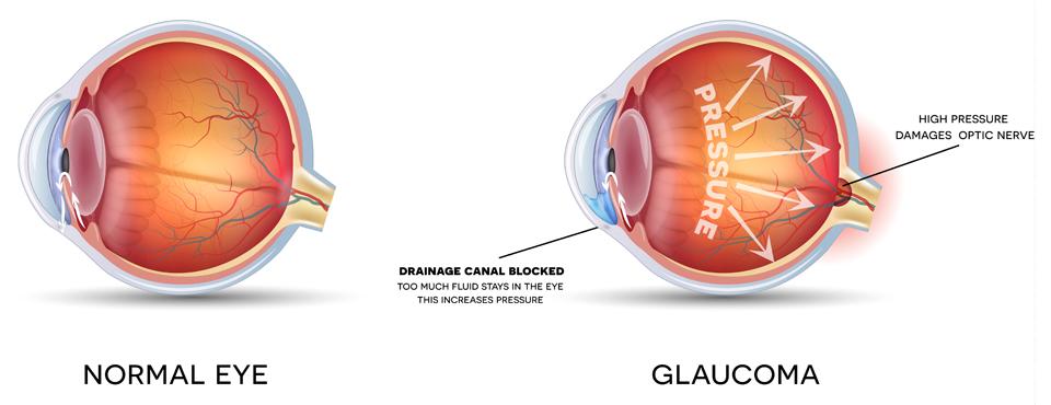 Exeter Eye glaucoma high pressure damages optical nerve diagram