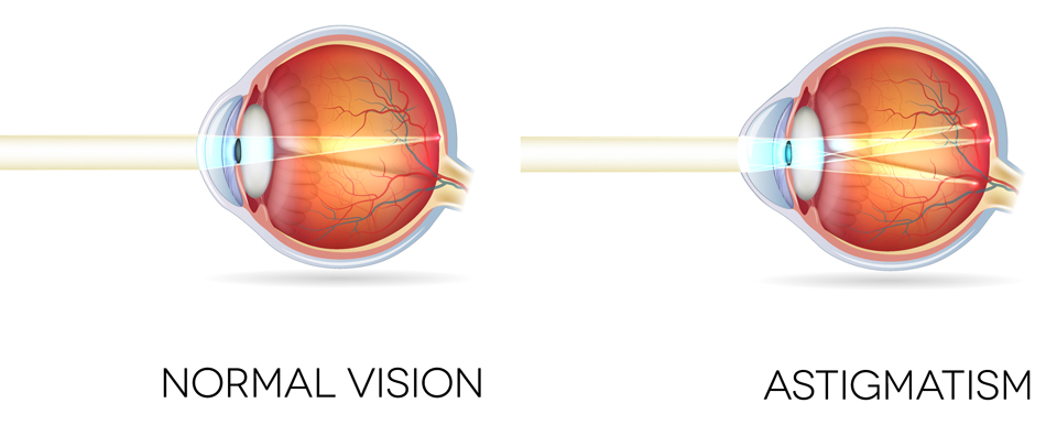 Exeter Eye normal vision vs astigmatism side view diagram