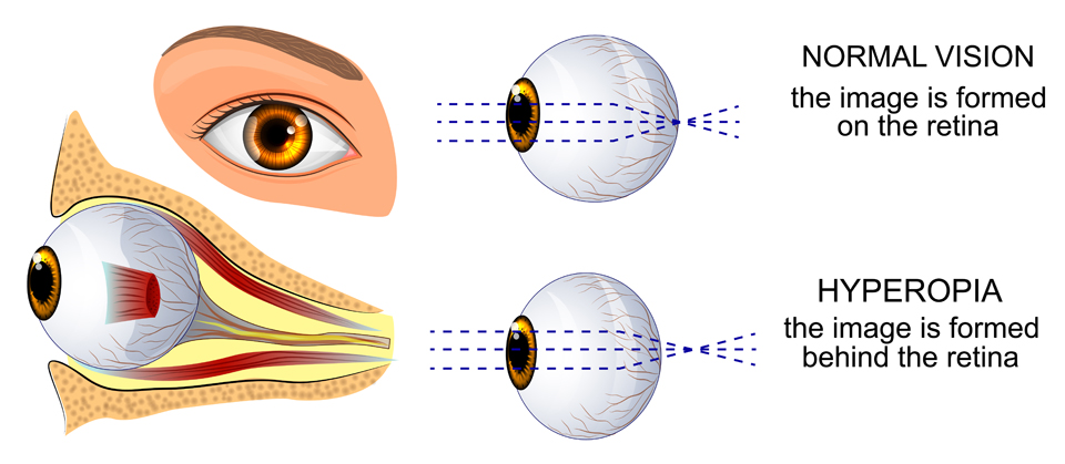 Exeter Eye normal vision vs hyperopia diagram