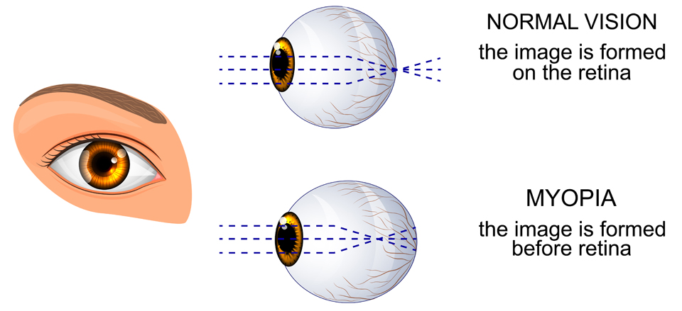 Exeter Eye normal vision vs myopia diagram