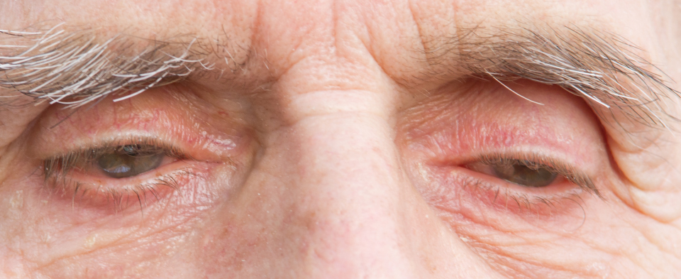 Exeter Eye symptoms droopy eyelids