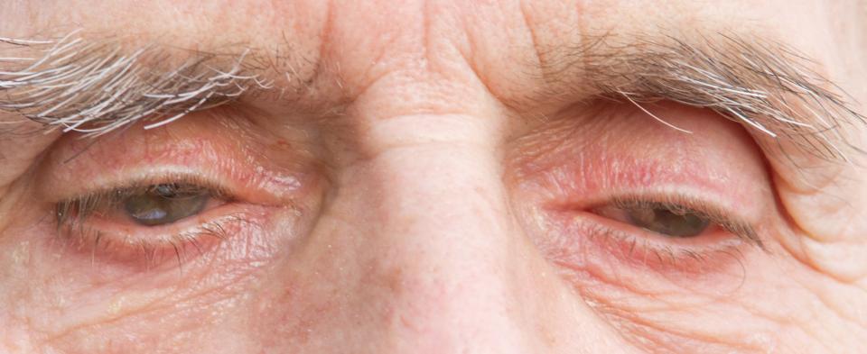Exeter Eye symptoms droopy eyelids