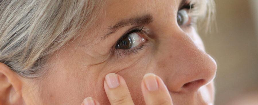 Eyelash Problems
