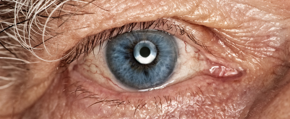 Exeter Eye treatments Corneal transplants