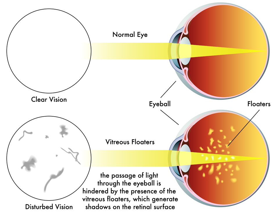 Exeter Eye vitreous floaters vs normal eye diagram